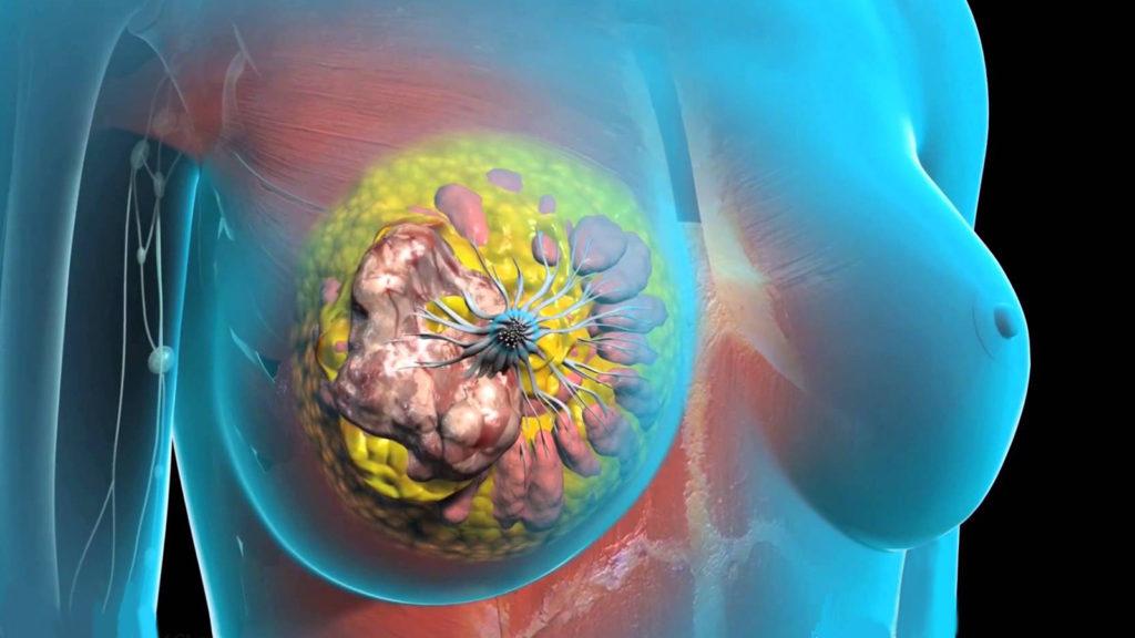 6 факторов риска рака молочной железы