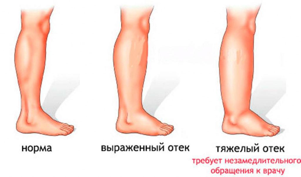 ангиодистрофия