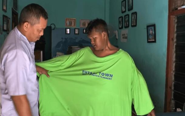 Самый толстый мальчик в мире похудел