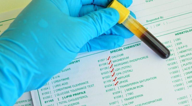 уровень мочевой кислоты в крови