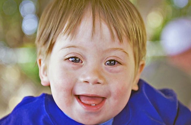 Мне сказали, что оба моих ребёнка родятся с синдромом Дауна, но они родились здоровыми. Как могло такое произойти?