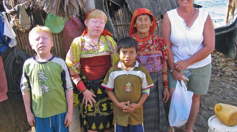 «Дети луны» - уникальные индейцы-альбиносы Панамы
