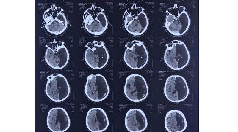 Снимок мужчины, который до 60 лет прожил с половиной мозга.