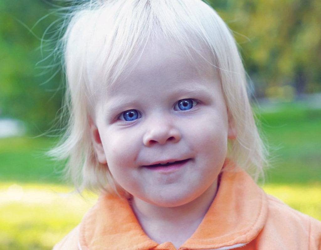 Голубоглазый малыш у кареглазых родителей - альбинизм