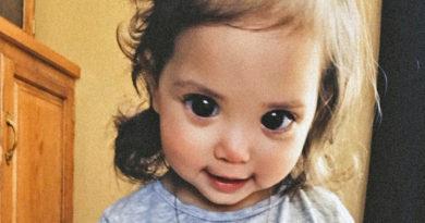 Малышка с огромными зрачками – последствие редкой генетической мутации