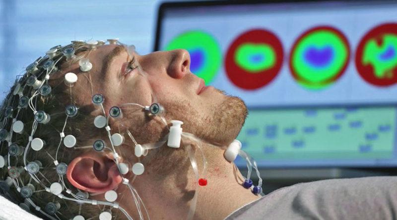 Эпилепсия и мигрени генетически взаимосвязаны