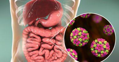 5 признаков проблем с кишечником