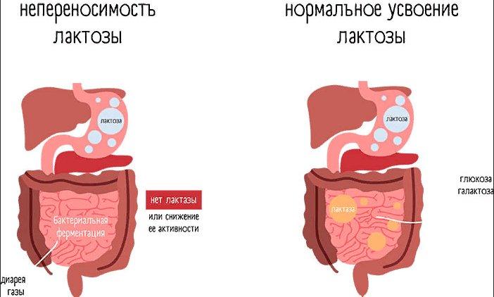 Непереносимость лактозы - симптомы