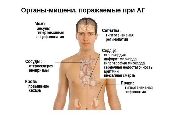 Артериальная гипертензия генетическое заболевание?