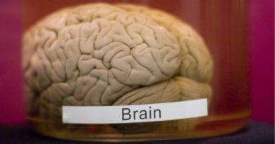 Поместить мозг в ведро и ждать 36 часов – зачем ученым такие эксперименты?