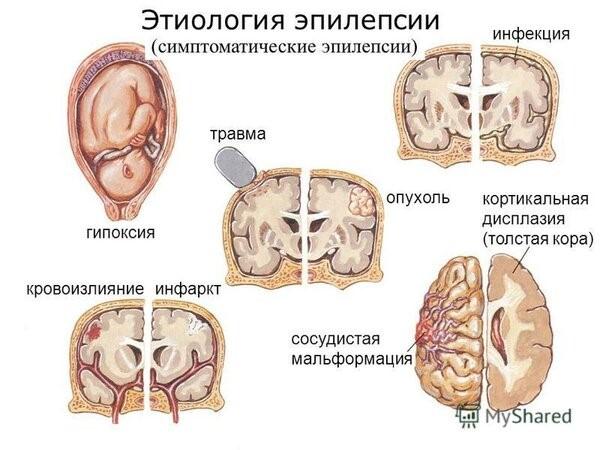 Эпилепсия. Причины